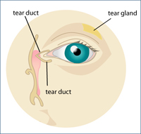 Dry Eye Syndrome Garden City