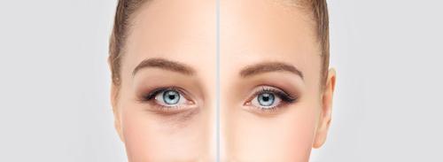 Eyelid Surgery Long Island